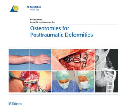 Compare Osteotomies for Posttraumatic Deformities (English) 1st Edition at Compare Hatke